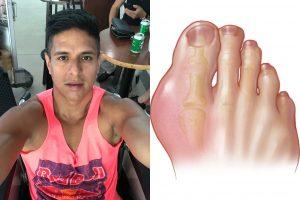 befreemysheeple gout