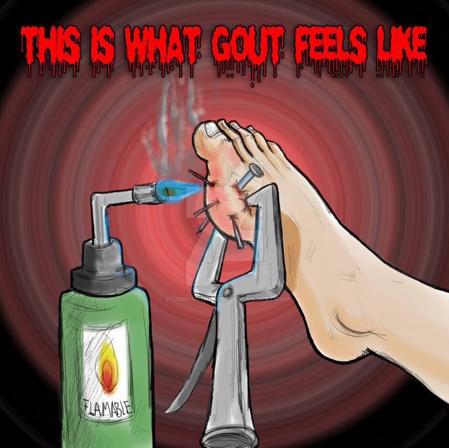 This is what gout feels like